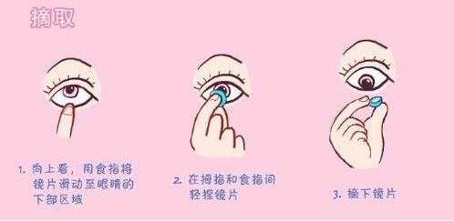 另外,如果佩戴隐形眼镜的时候没有清洁双手和镜片,很容易出现种种炎症